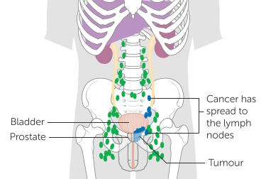 Nodes (N) - Prostate cancer has spread to lymph nodes